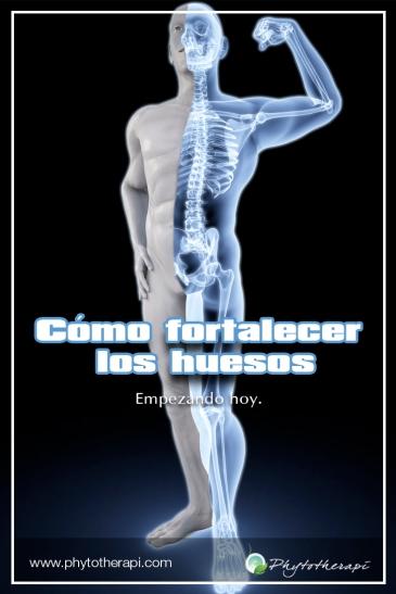 Bones Esp